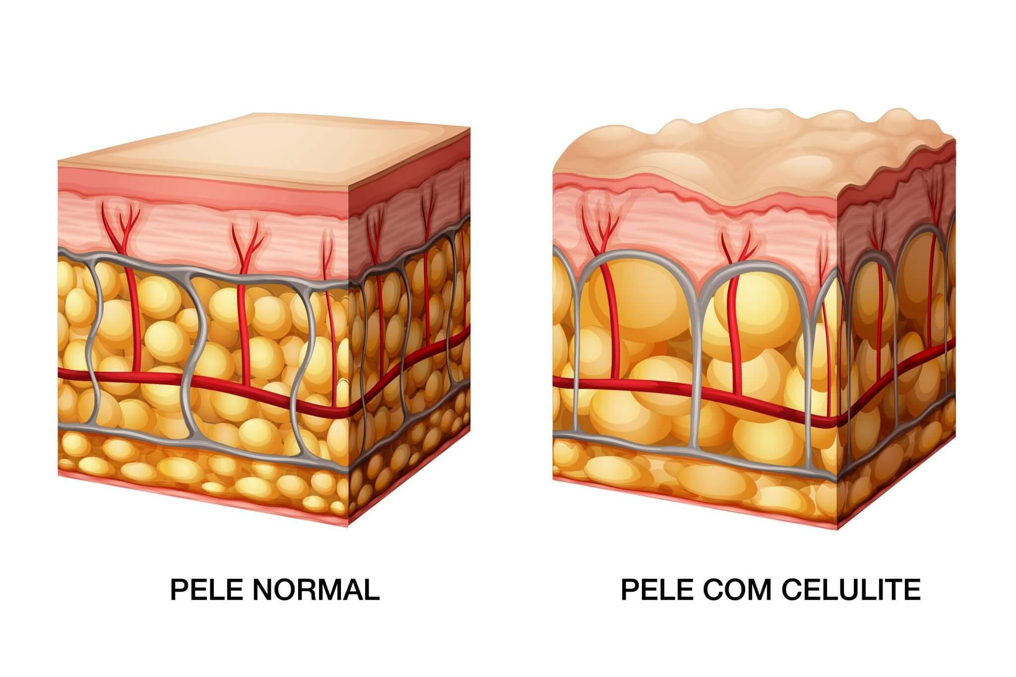 Formação de celulite