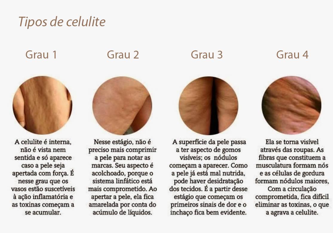 Tipos de celulite